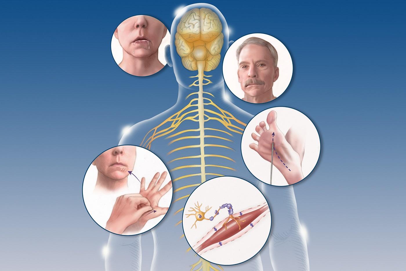 Novartis: Μοναδική αυτοχορηγούμενη θεραπεία για την σκλήρυνση κατά πλάκας