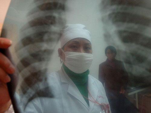 Ανησυχητικά κρούσματα φυματίωσης στην Ευρωπαϊκή ήπειρο