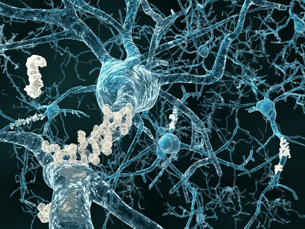 Ο διαβήτης συνδέεται με το Αλτσχάιμερ σύμφωνα με νέα μελέτη