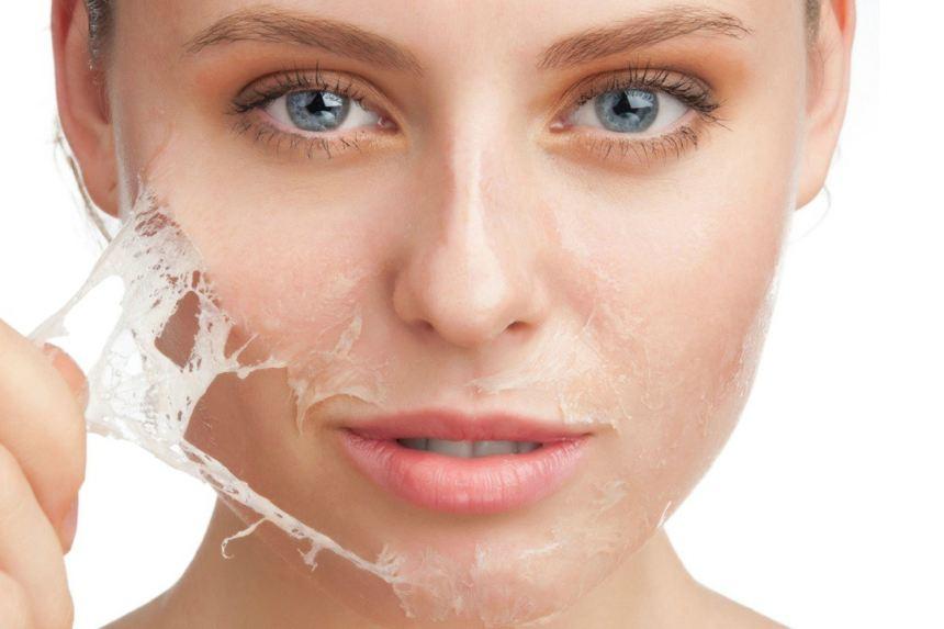 Tips:καταπολεμήστε την ξηρότητα του δέρματος το χειμώνα
