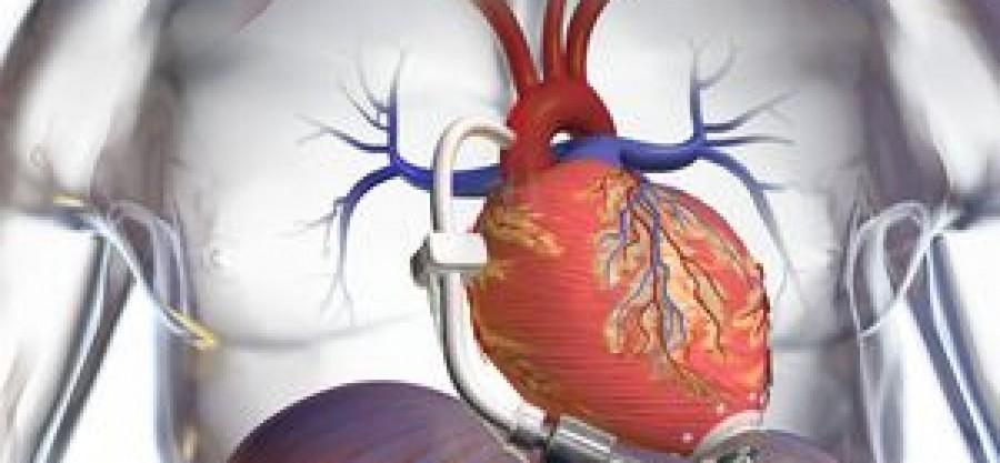 Μπορούν οι εφιάλτες να προκαλέσουν καρδιακή προσβολή;