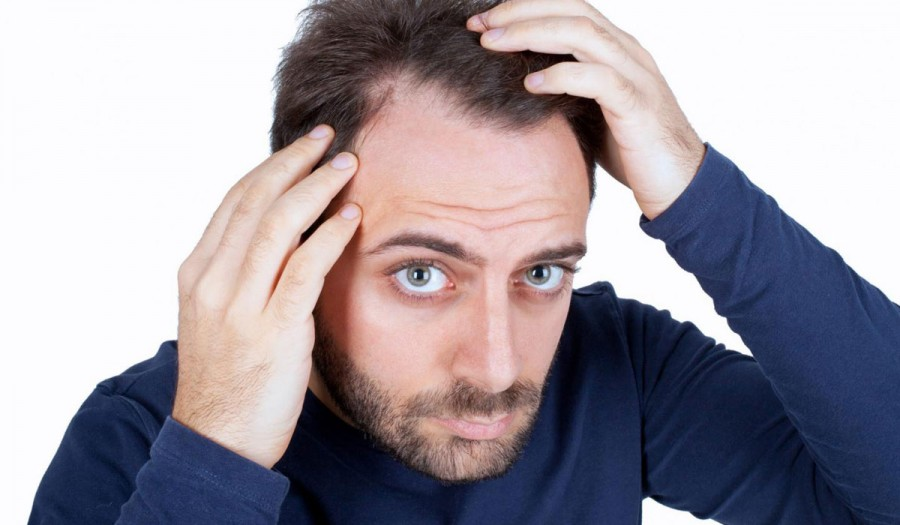 Νέες αποτελεσματικές θεραπείες για την αντιμετώπιση της αλωπεκίας