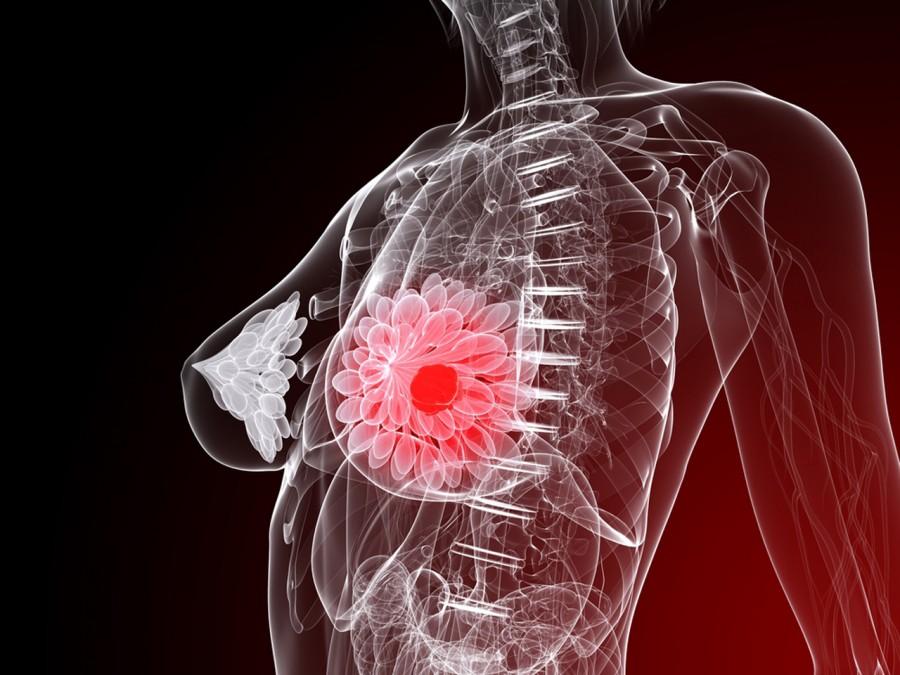 Καρκίνος Μαστού Πρόληψη: Πώς να μειώσετε τον κίνδυνο νόσησης από καρκίνο [vid]