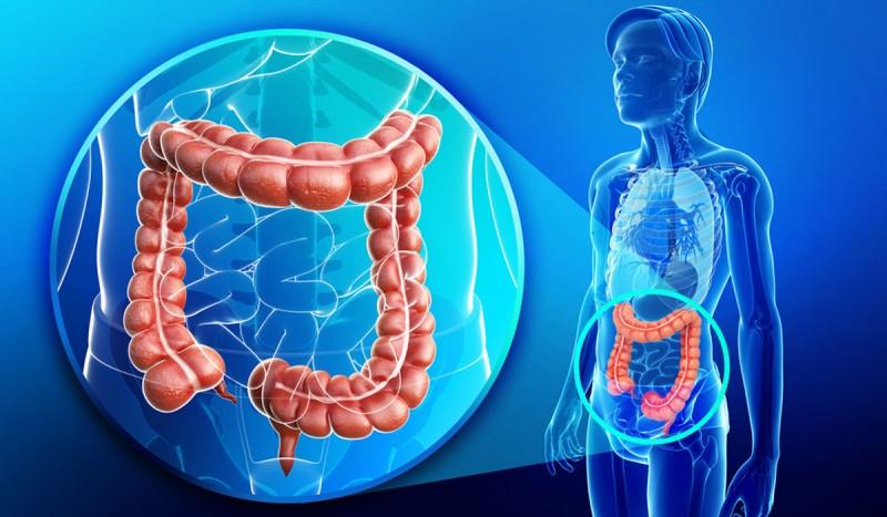 Τα φουσοβακτήρια επιδεινώνουν τον καρκίνου του εντέρου