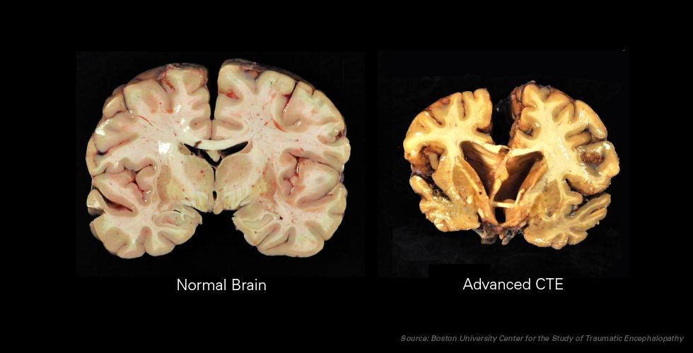 Η χρόνια τραυματική εγκεφαλοπάθεια μοιάζει με τη νόσο Αλτσχάιμερ