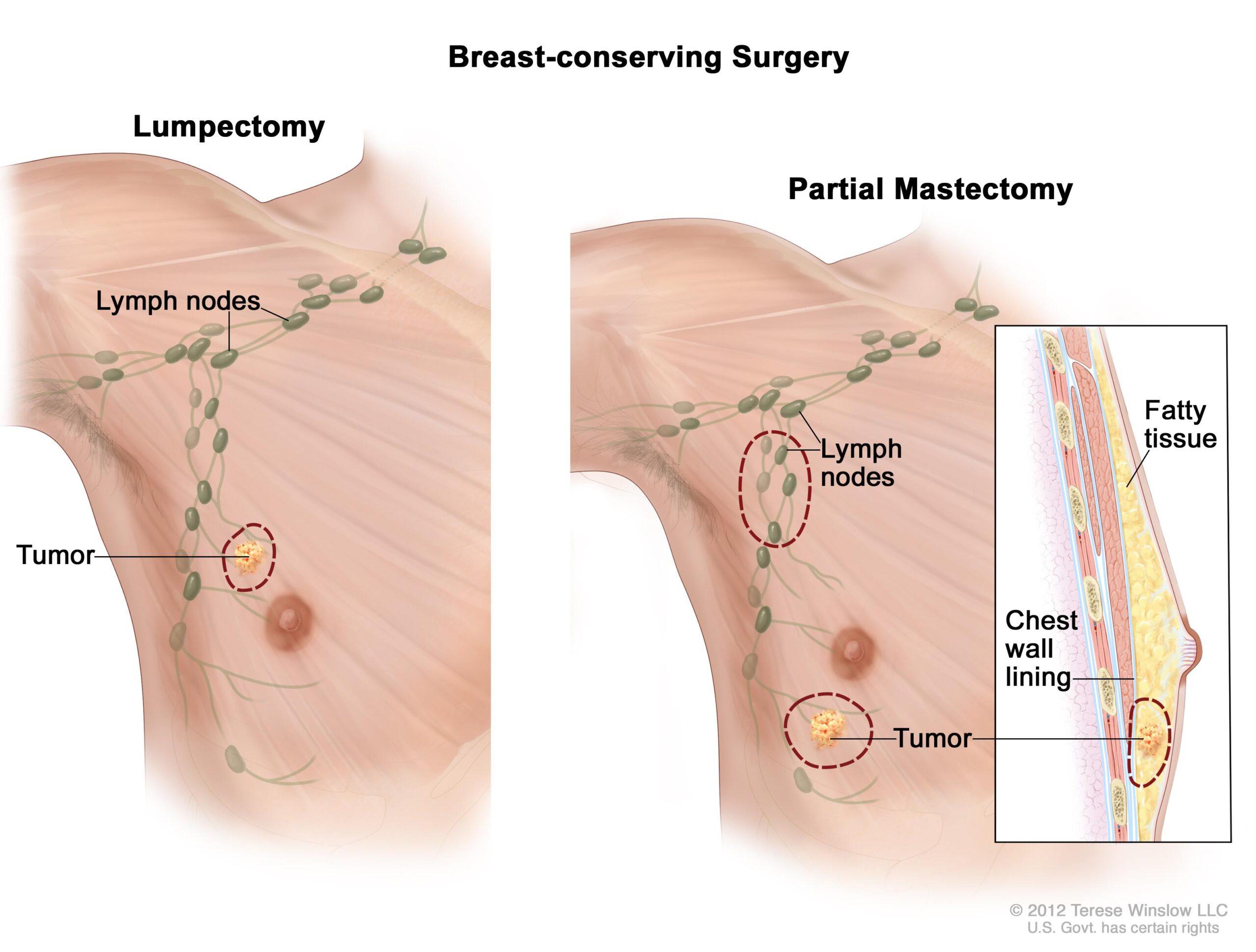 Γιατί διαφέρει το μικροβίωμα στις γυναίκες με καρκίνο του μαστού;