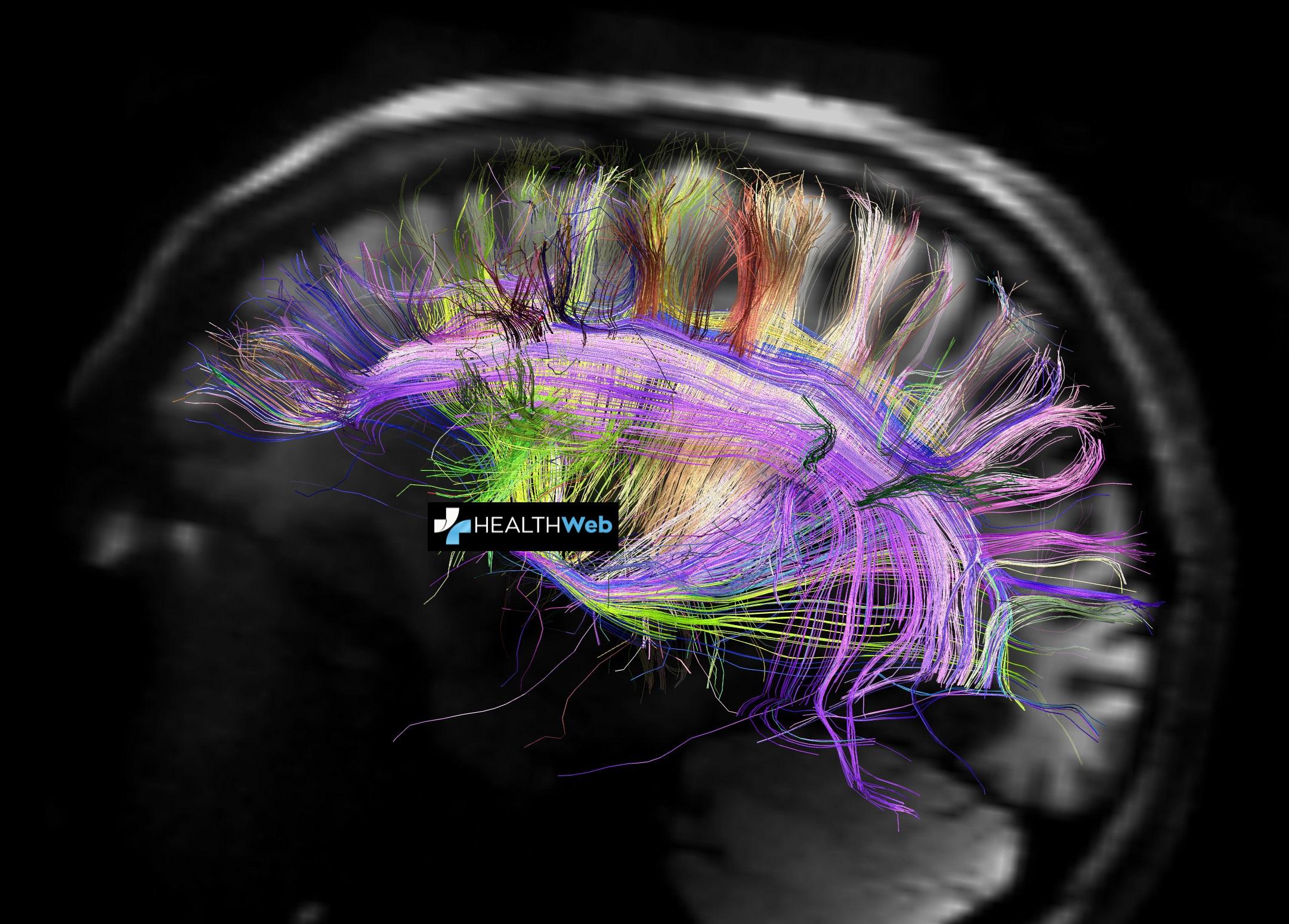 Πως η μαγνητική τομογραφία βοηθά τους ερευνητές στην κατανόηση του εγκεφάλου;