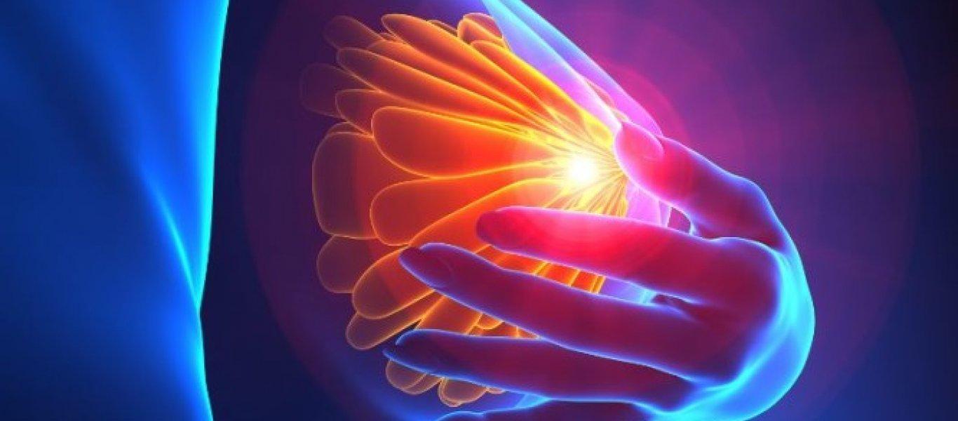Ποιος παράγοντας προστατεύει από τον καρκίνο του μαστού;
