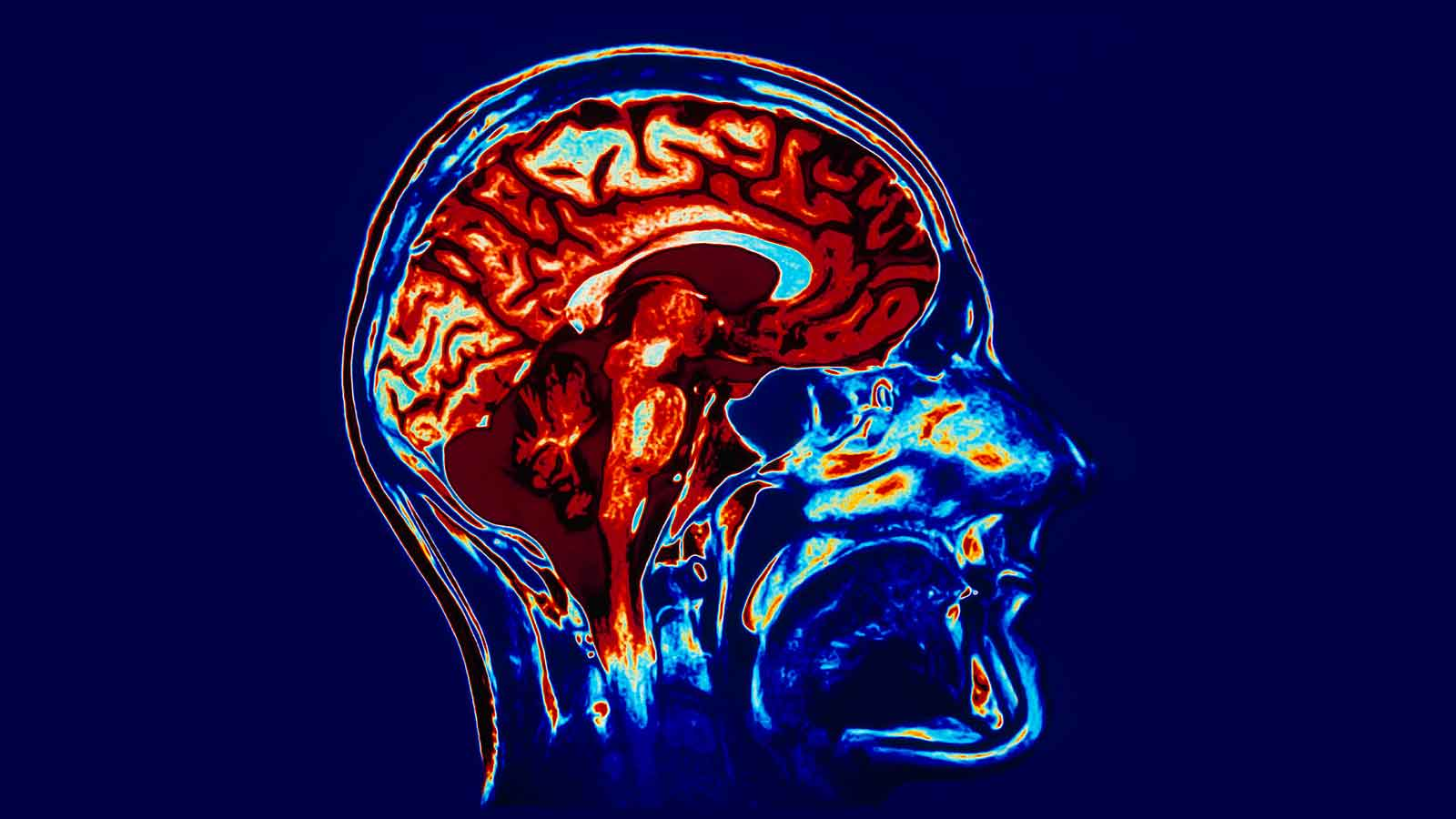 Εντοπίστηκε περιοχή στον εγκέφαλο που επηρεάζει την όρεξη