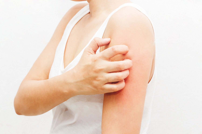Tips για πρόληψη από τροφικές αλλεργίες