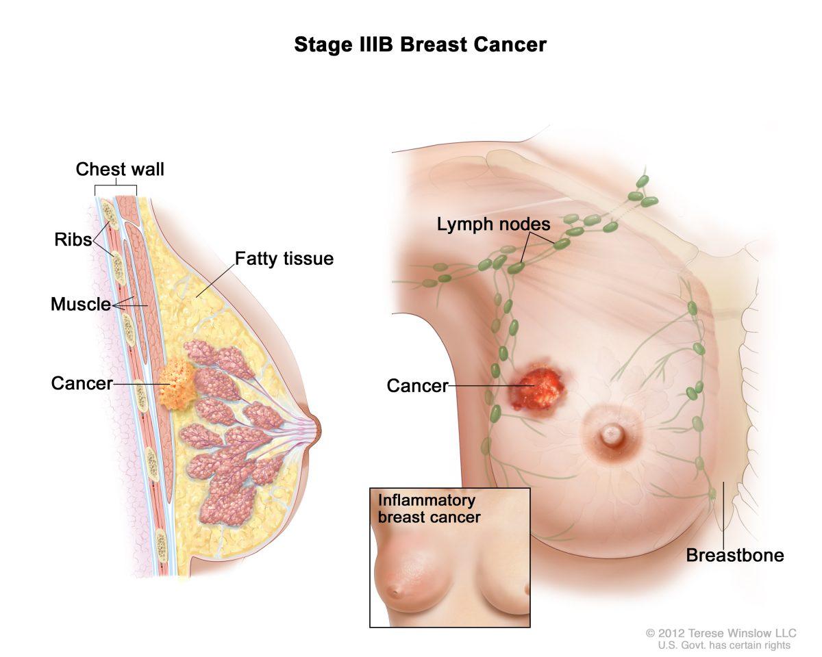Νέα μέθοδος ακριβούς ακτινοβόλησης μαστού
