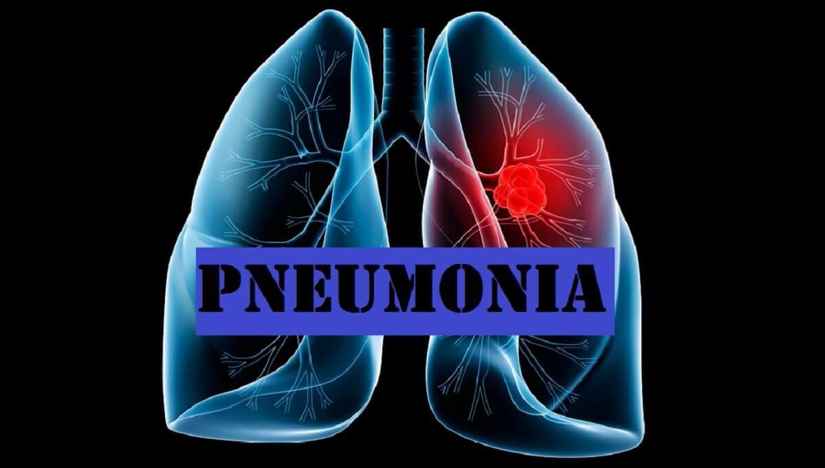 Πώς ένα κρυολόγημα μπορεί να εξελιχθεί σε πνευμονία