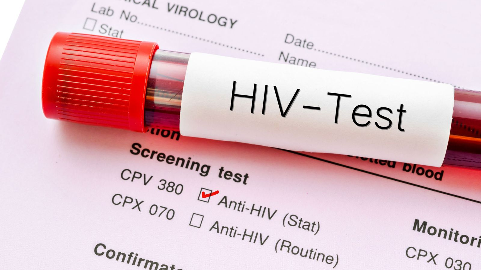 Νέα θεραπεία καταστέλλει πλήρως τη λοίμωξη από τον ιό HIV