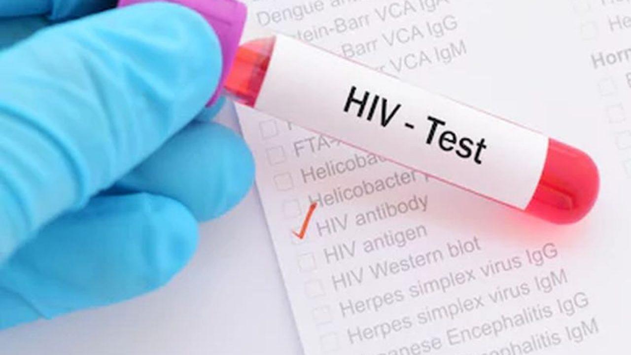 Νέα ανακάλυψη για την καταπολέμηση του HIV