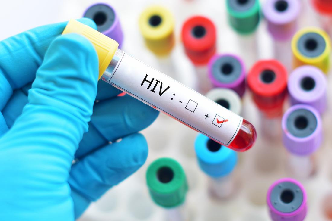 Η μόλυνση από τον ιό HIV αυξάνει τον κίνδυνο επιπτώσεων στην υγεία