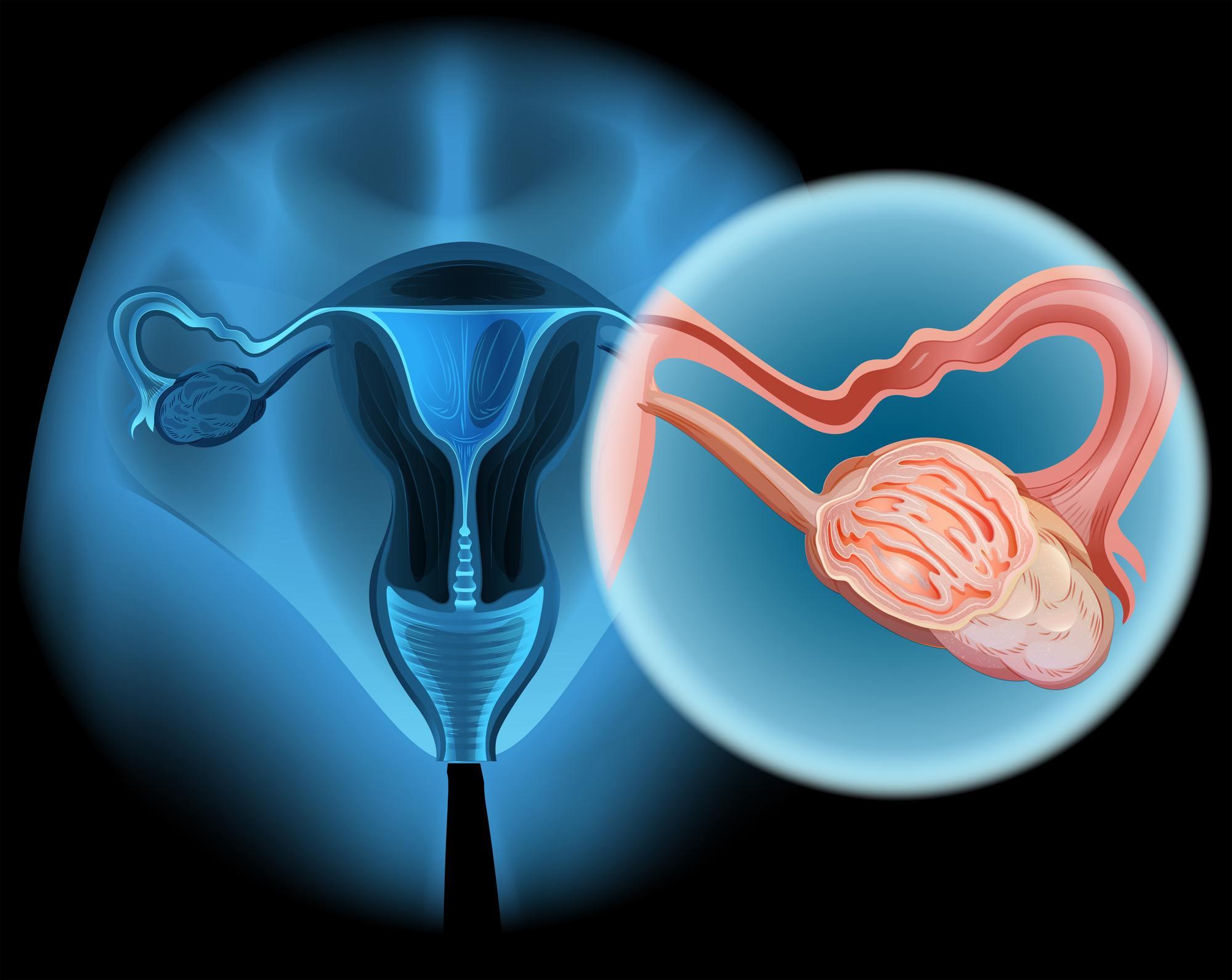 Έγκαιρη διάγνωση καρκίνου ωοθηκών με τεστ αίματος