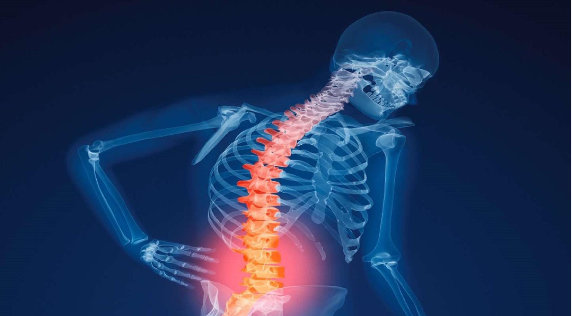 Ανακαλύφθηκε παράγοντας που αποδυναμώνει τα οστά