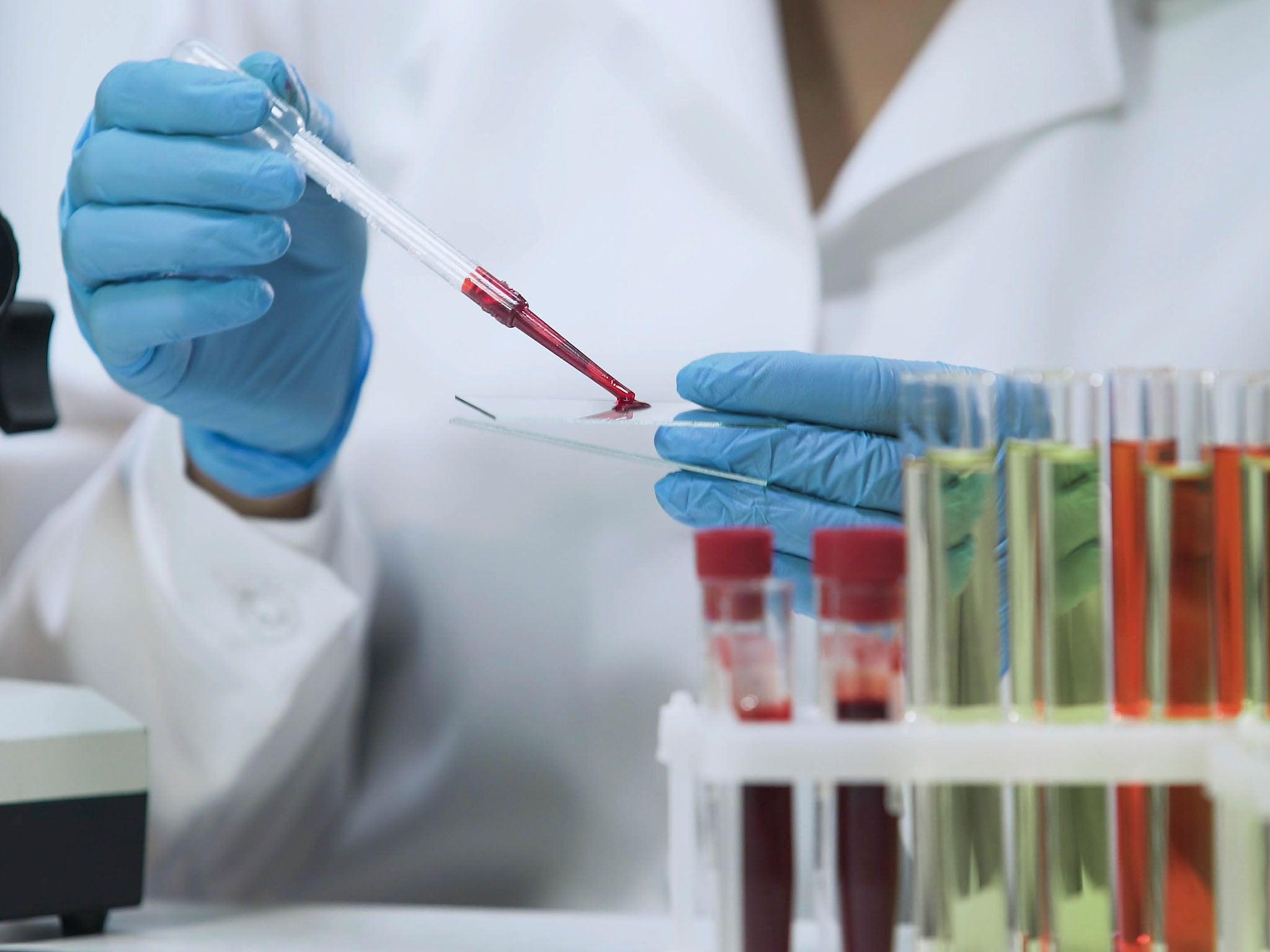 Το εργαστήριο των ΗΠΑ αναγνωρίζει σπάνια νέο στέλεχος του ιού HIV