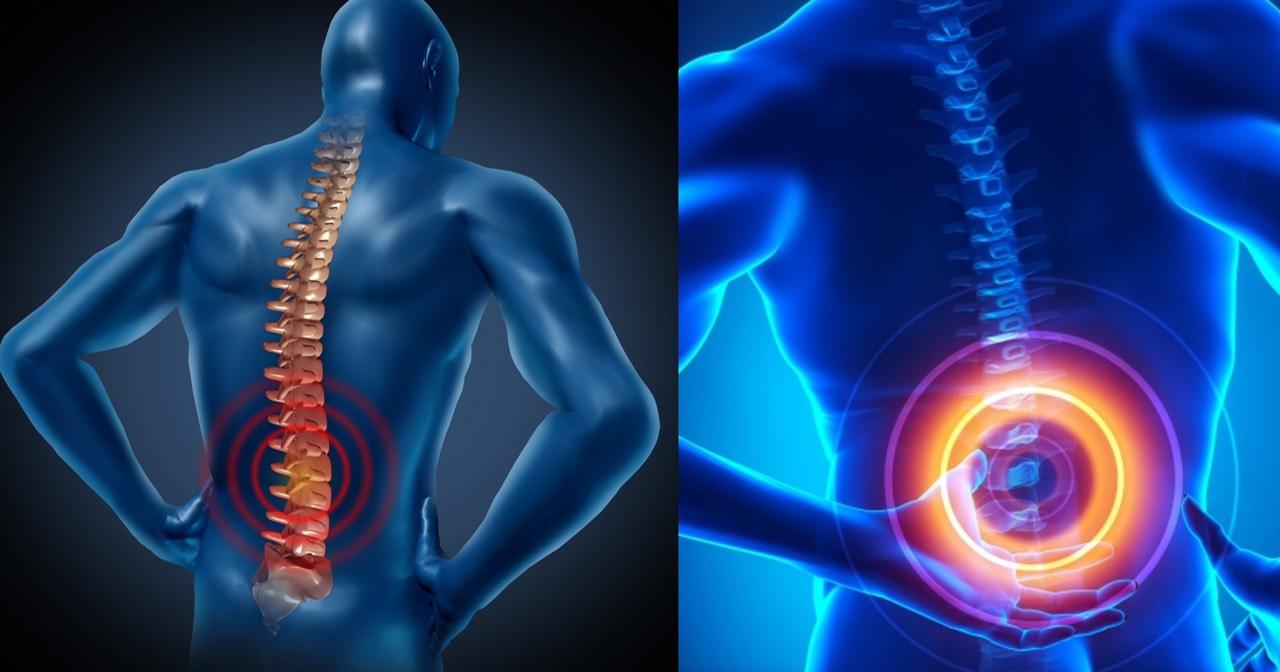 Ανιχνεύτηκαν παράγοντες κινδύνου για τον πόνο της μέσης