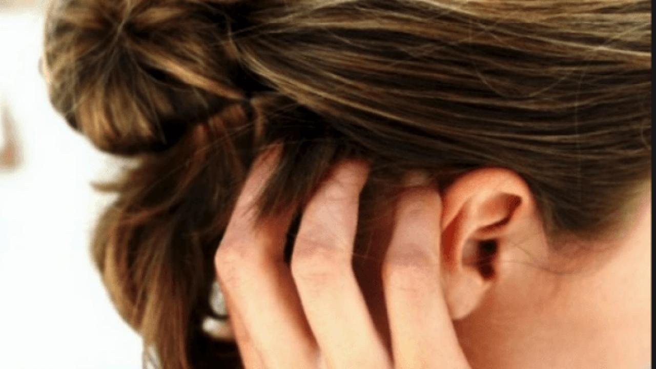 Πώς να καταπολεμήσετε τις ενοχλητικές νιφάδες στα μαλλιά με φυσικό τρόπο