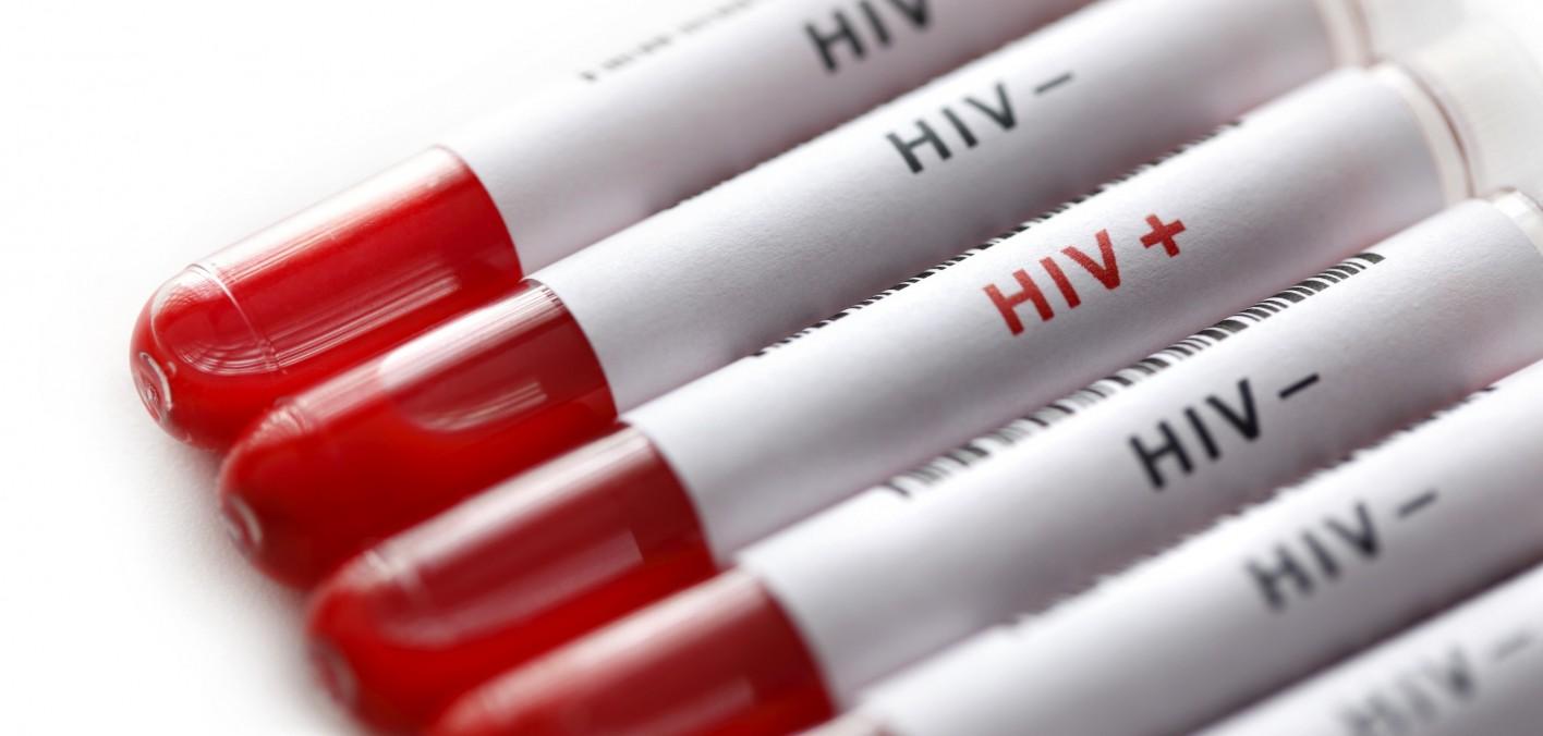 Η θεραπεία δεύτερου ατόμου από HIV είναι γεγονός