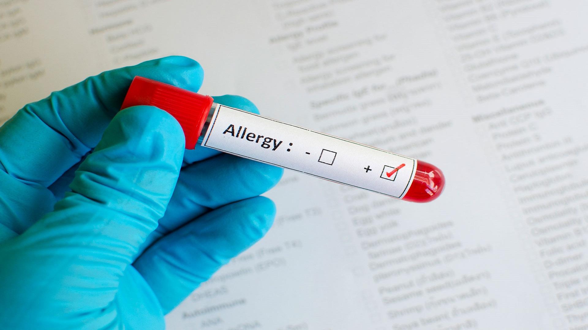 Έρευνα αποκαλύπτει πως πυροδοτούνται οι αλλεργικές αντιδράσεις