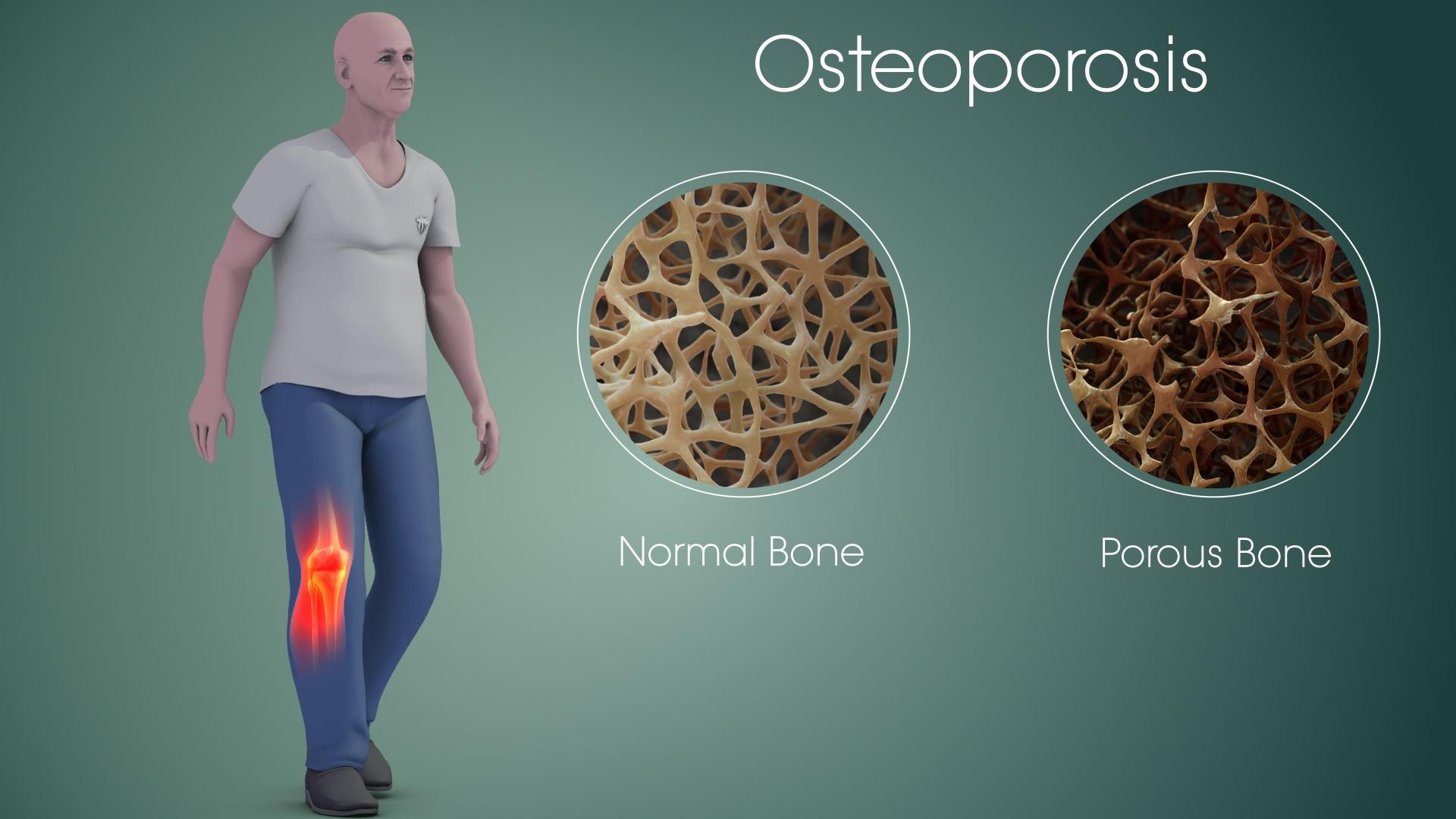 Νέα τεχνική για την πρόληψη της οστεοπόρωσης