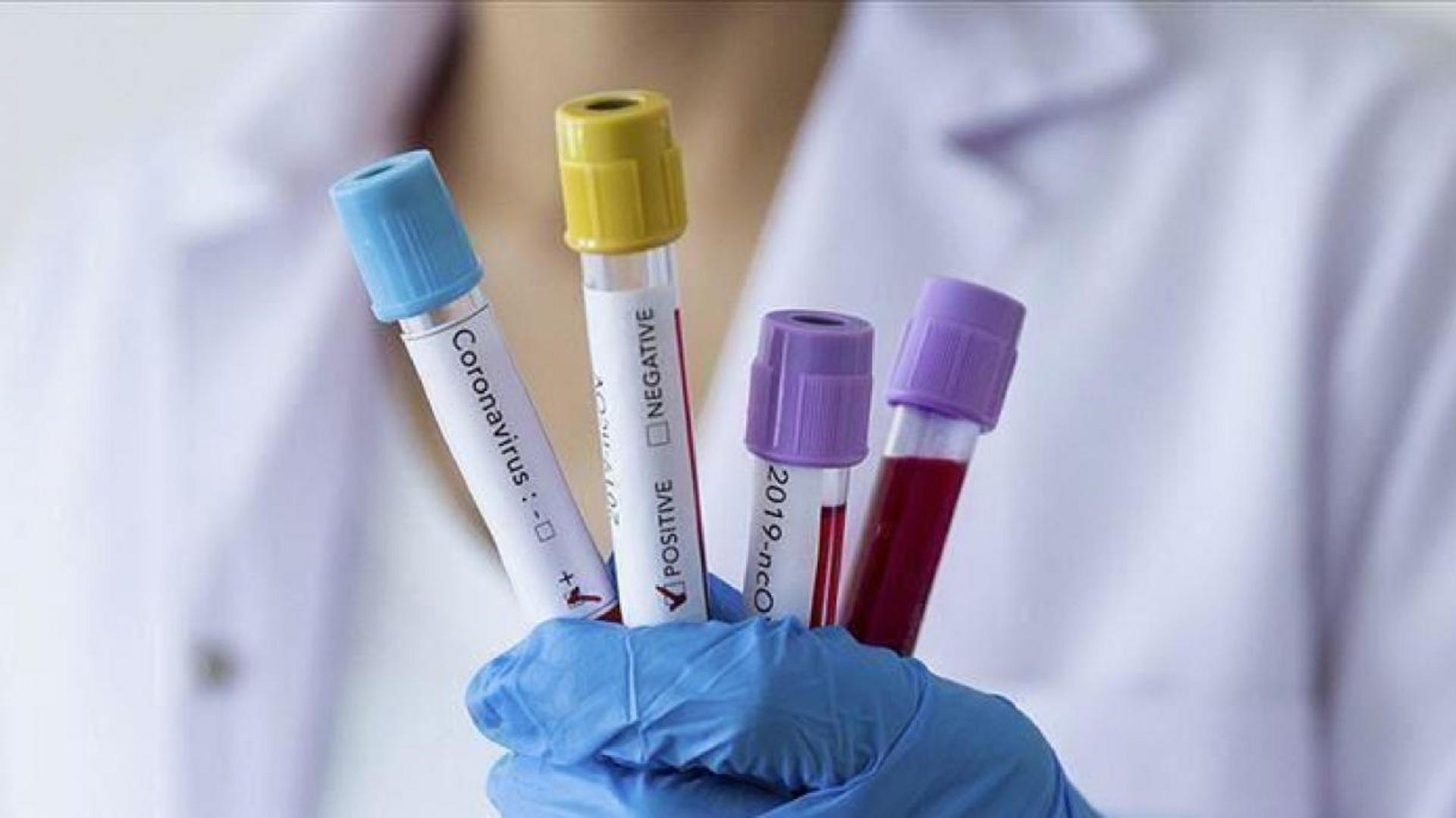 Το ανοσοποιητικό και τα κύτταρα που αμύνονται στον κοροναϊό
