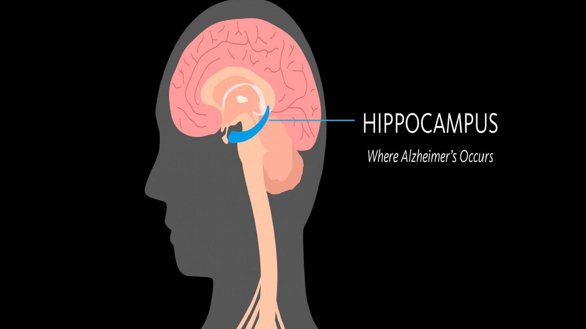 Αλτσχάιμερ φάρμακα: Νέα ελπιδοφόρα προσέγγιση για τη νόσο