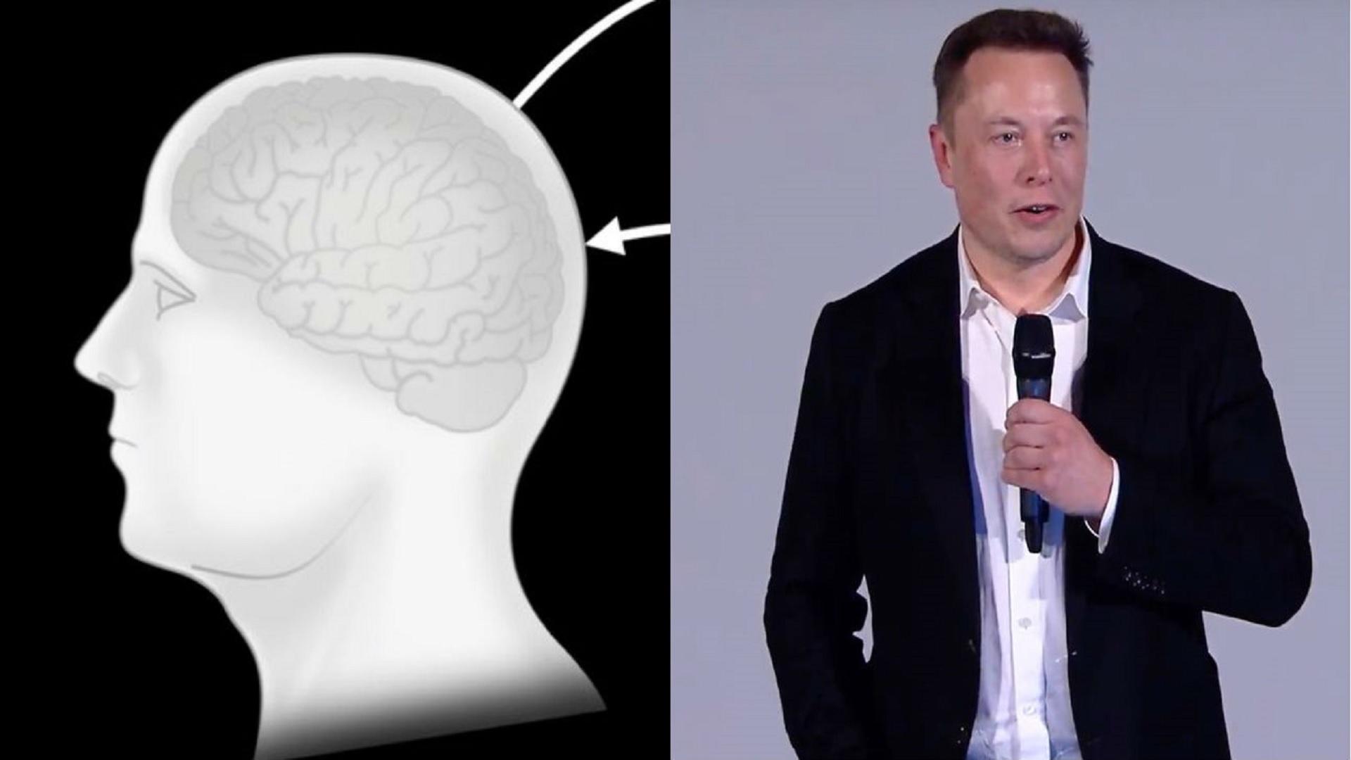 Έλον Μασκ τσιπάκι: Εμφύτευμα εγκεφάλου για έλεγχο κινητών -υπολογιστή με τη σκέψη [vid]