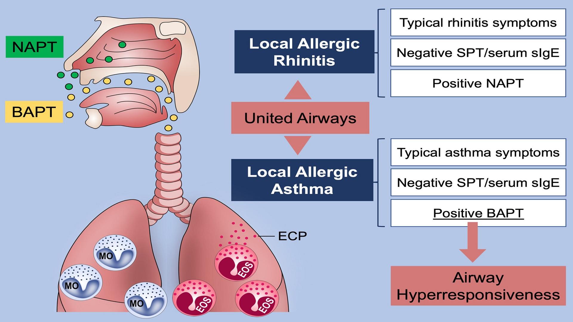 Αλλεργικό άσθμα τεστ: Νέα έρευνα δείχνει αλλαγές στον ανθρώπινο αεραγωγό [vid]