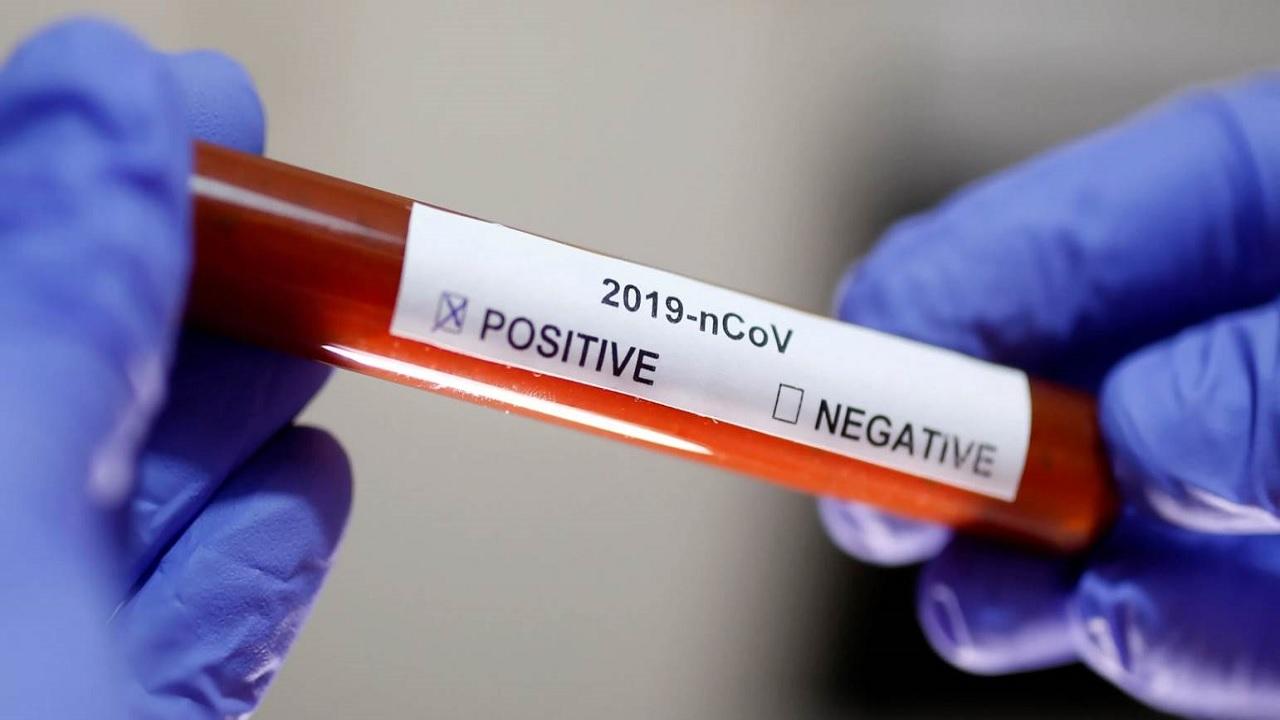 Κορωνοϊός τεστ: πόσο χρόνο μένουν στον οργανισμό ίχνη του ιού
