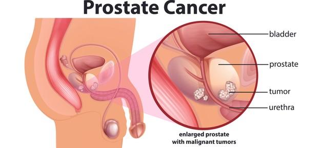 cancer prostate.jpg