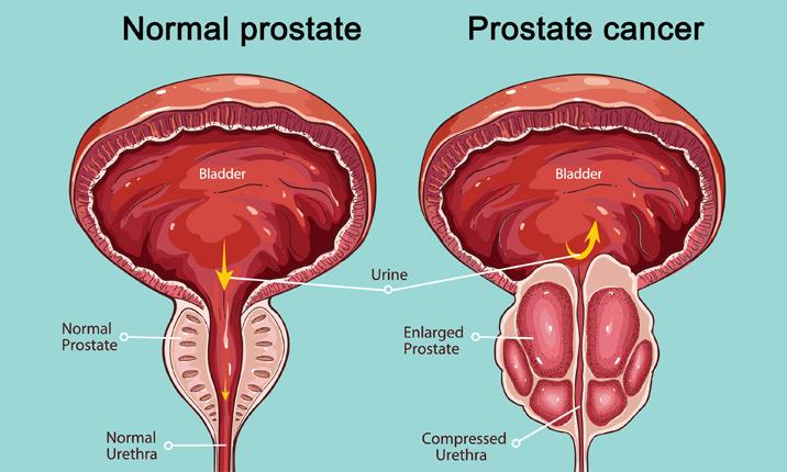 surgery-prostate-cancer.jpg