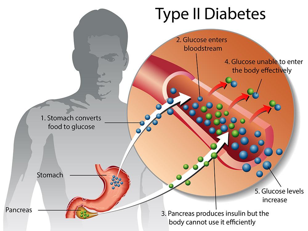 type-2-diabetes-49a3ee.jpg