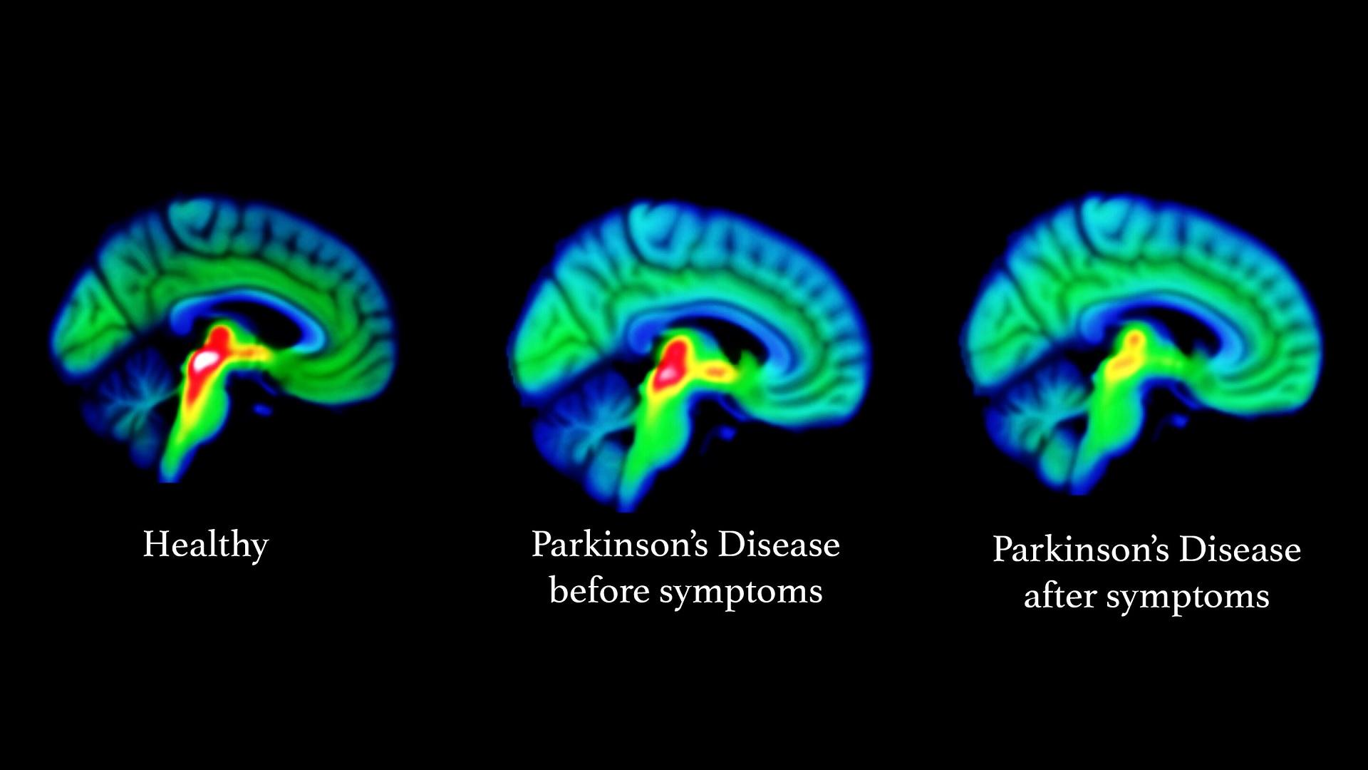 """Πάρκινσον συμπτώματα στάδια: Έρευνα βλαστικών κυττάρων """"χτυπά"""" τη νόσο"""
