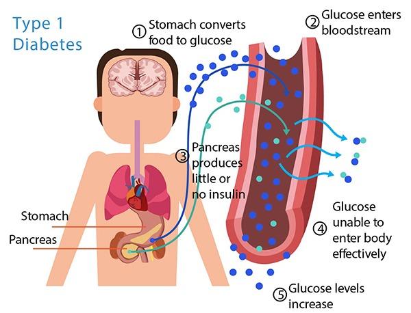 diabetes1.jpg