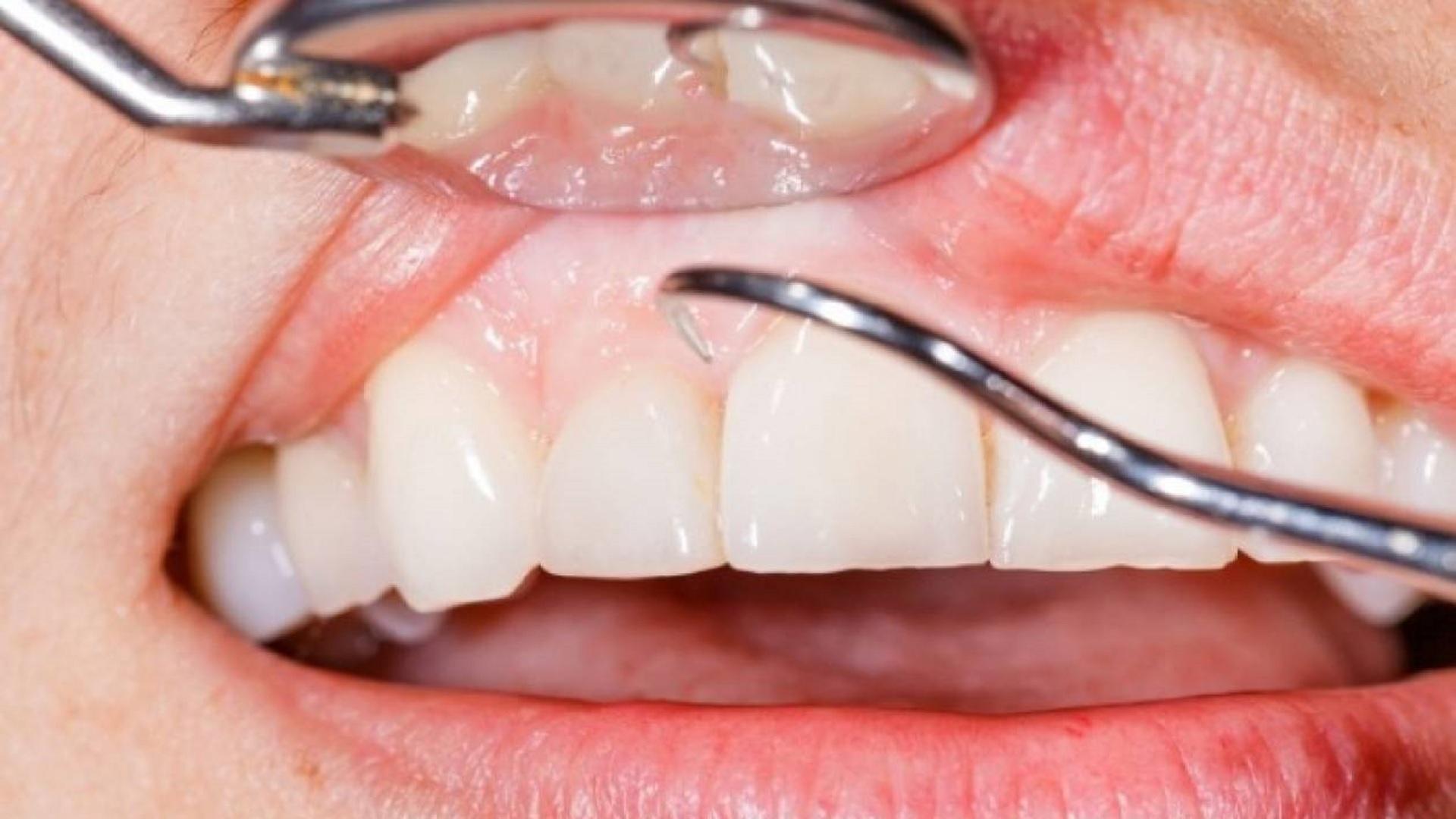 Καρκίνος διάγνωση στόμα: Η ουλίτιδα αυξάνει τον κίνδυνο