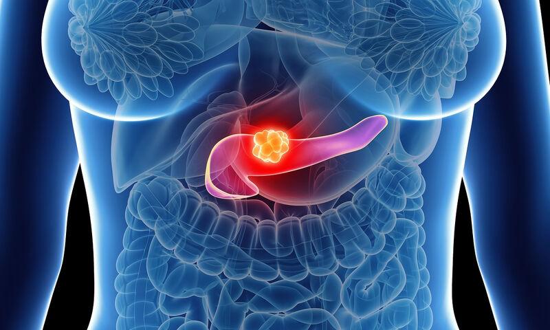 pancreatic_cancer.jpg