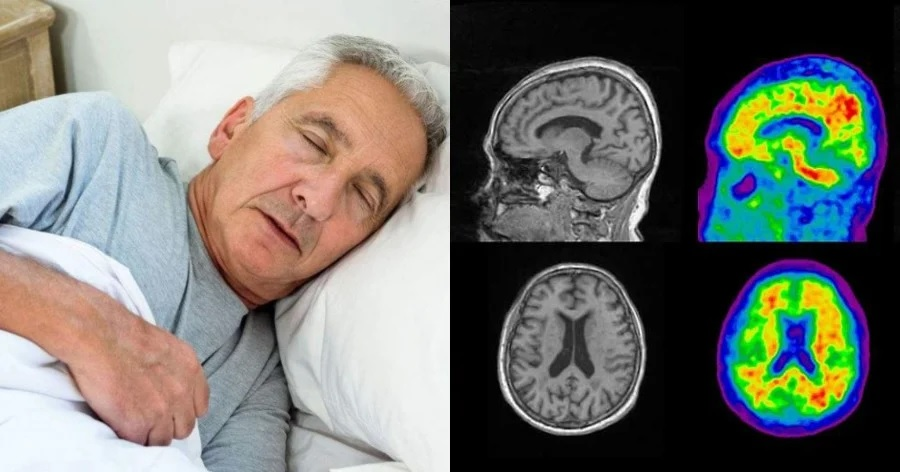 Ύπνος διαβήτης έρευνα: Οι επιπτώσεις των συνηθειών