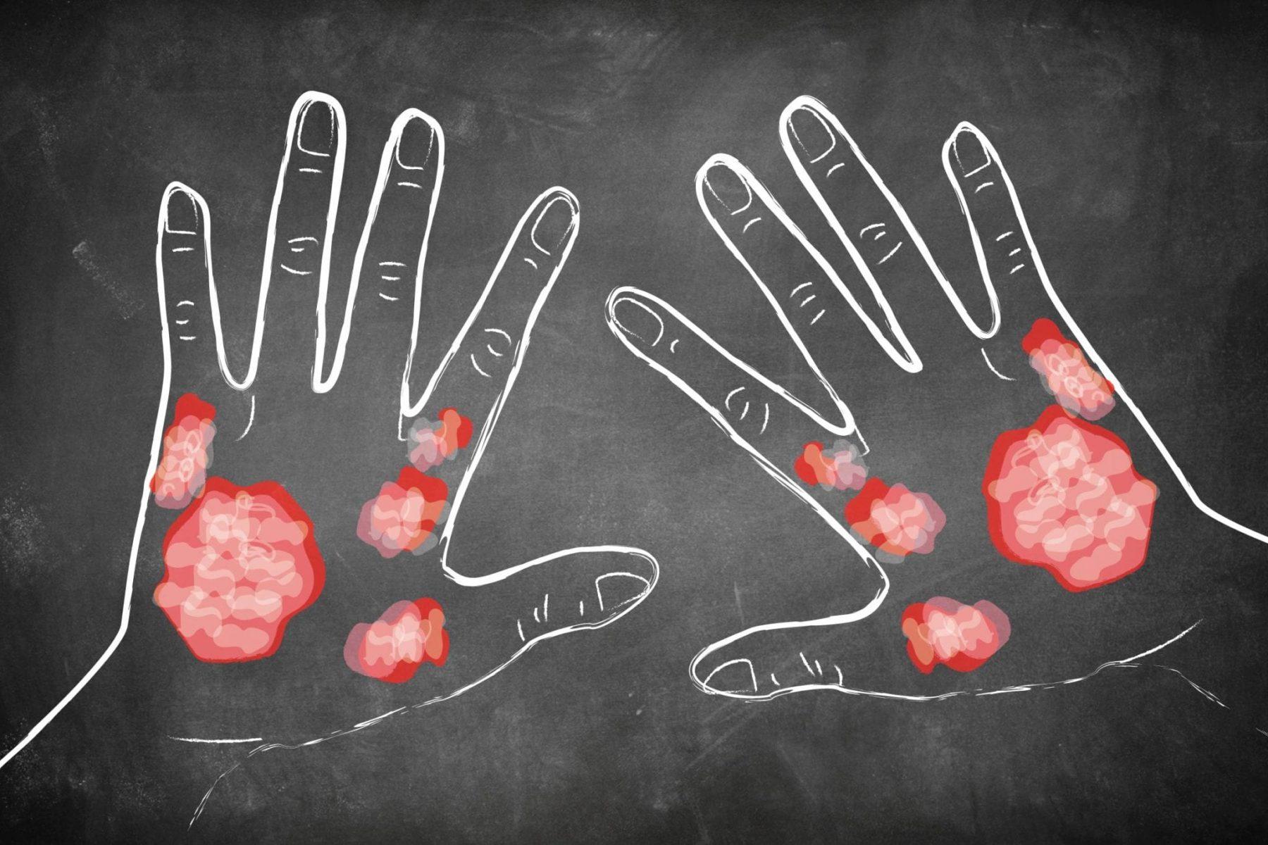 Ψωρίαση δερματοπάθεια: Παγκόσμια Ημέρα Ψωρίασης