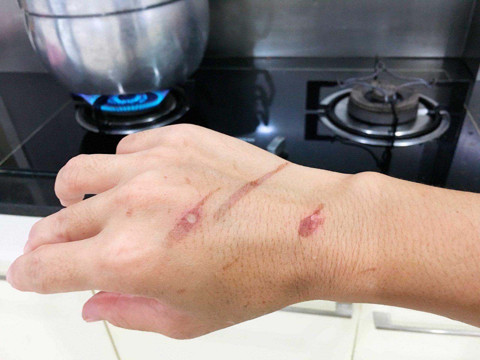Κάψιμο στο χέρι: Πώς φροντίζουμε ένα έγκαυμα