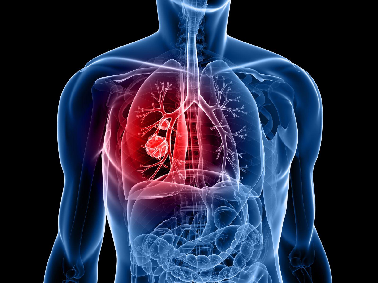 Καρκίνος πνεύμονας έρευνα: Ο μακάβριος ενζυματικός χορός του καρκίνου του πνεύμονα [vid]