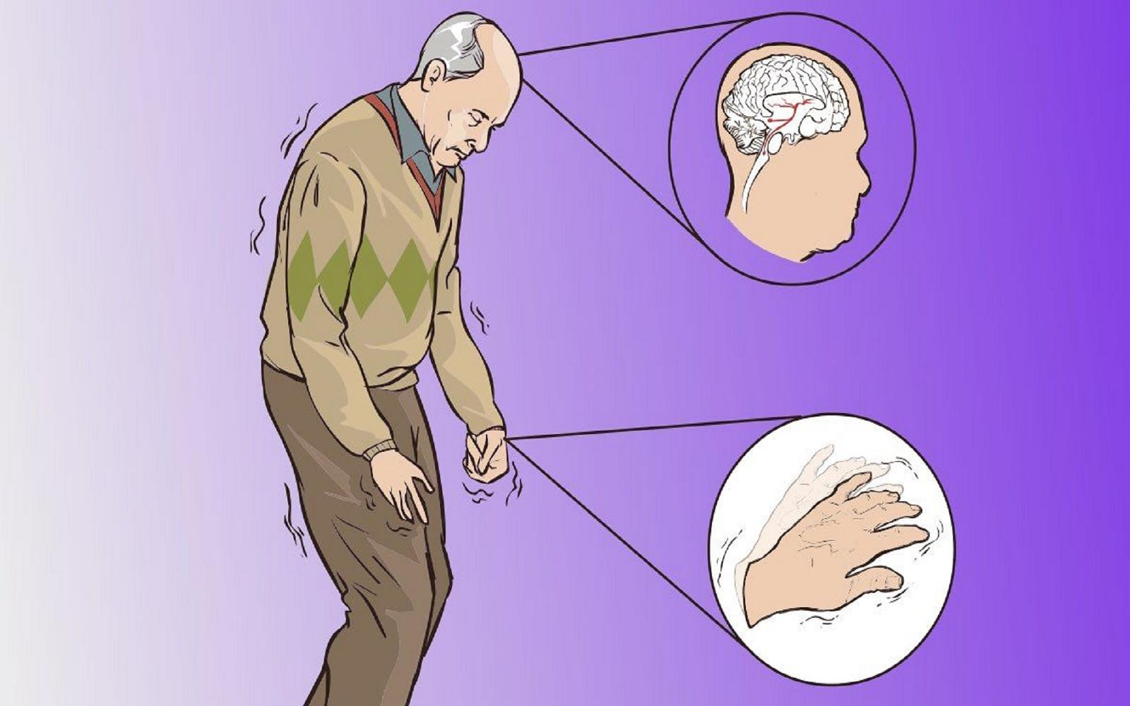Νευροεκφυλιστική διαταραχή: Θεραπευτική πρόοδος σε μία δύσκολη ασθένεια