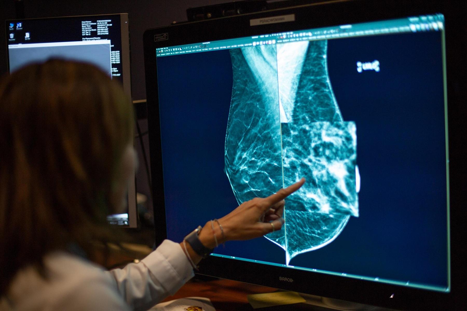 Καρκίνος μαστός θεραπεία: Νέες ανακαλύψεις για την αντιμετώπισή του