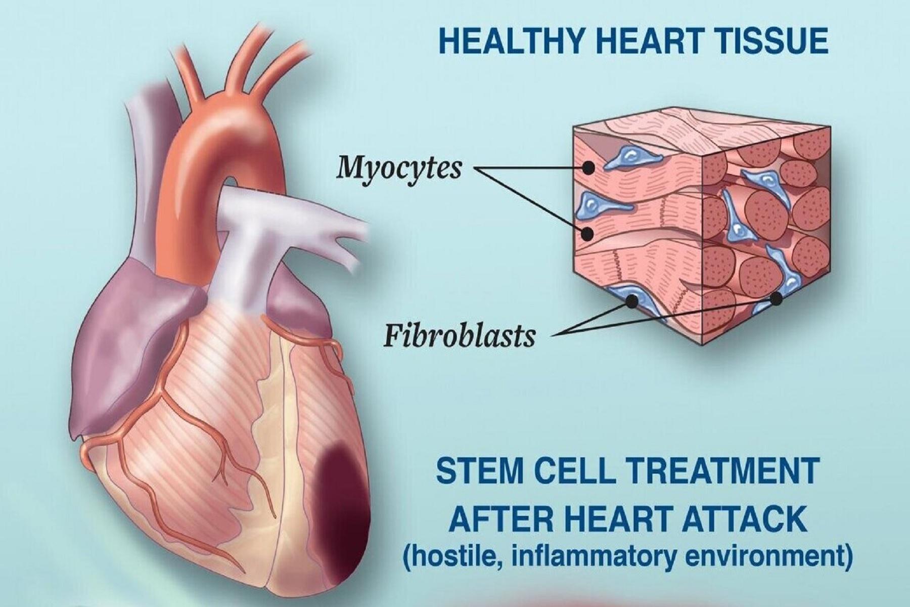 Καρδιακή ανεπάρκεια διάγνωση: Μηχανική μάθηση για ακρίβεια