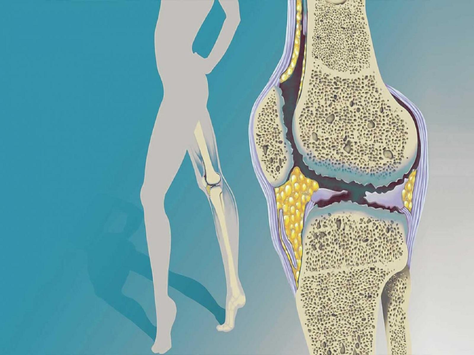 Μόσχευμα ιστός άρθρωση: Εργαστηριακή ανάπτυξη και εξατομικευμένη αντικατάσταση