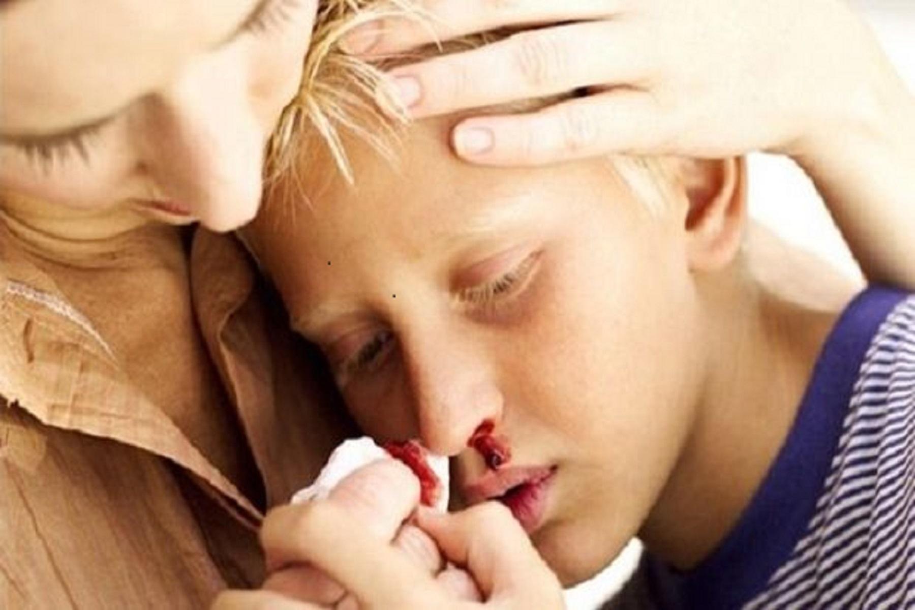 Αιμορραγία Μύτη: Πώς να σταματήσουμε την ρινορραγία στο σπίτι