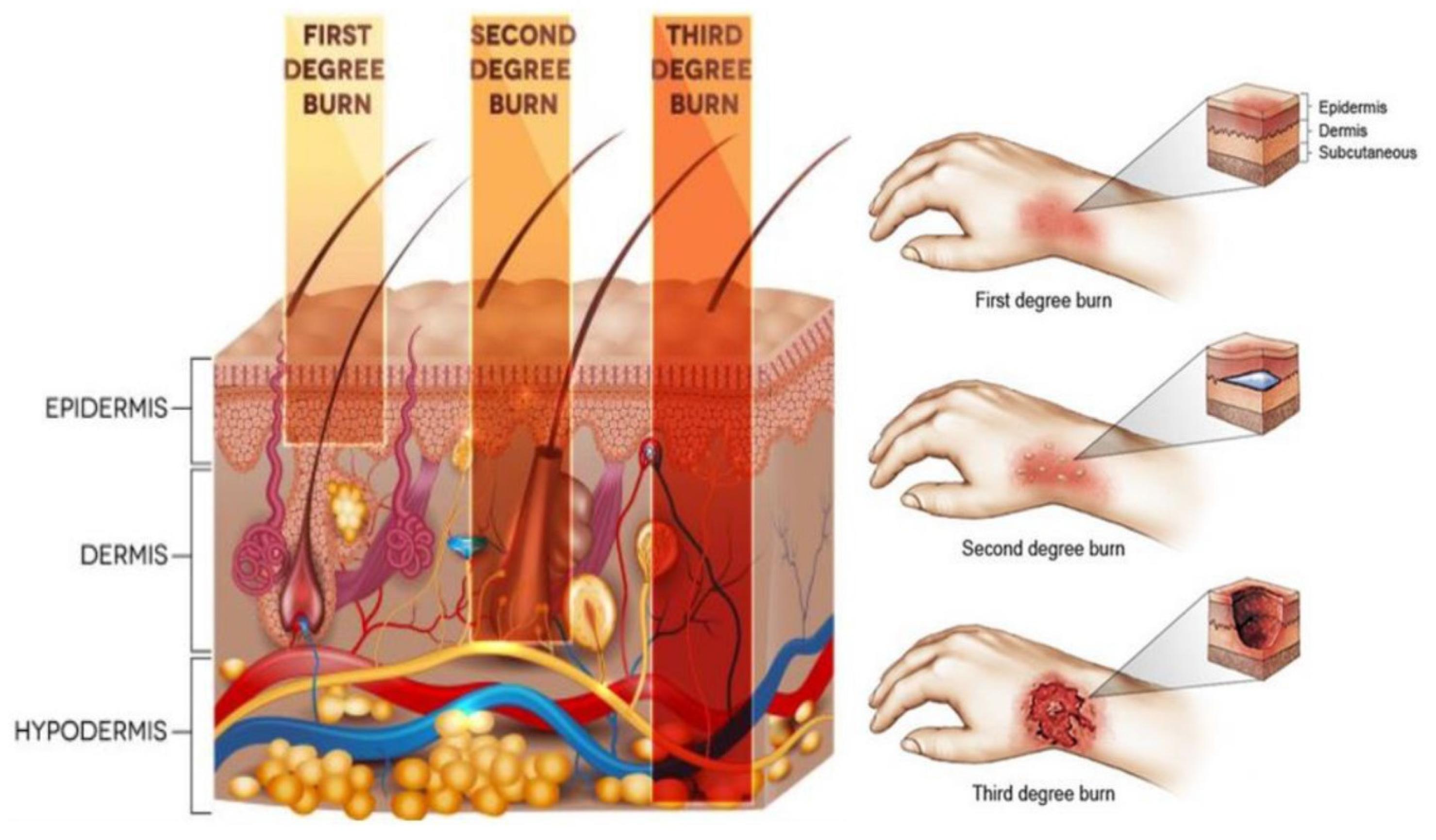 Τραύμα θεραπεία τεχνολογία: Αποτελεσματικό υδροτζέλ εξαφανίζει τις ουλές