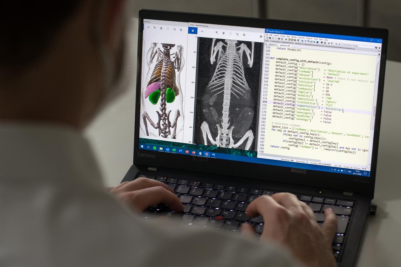 Ιατρική απεικόνιση τεχνητή νοημοσύνη: Οι αλγόριθμοι αυτομάθησης κάνουν θαύματα